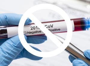 CEMAC : Les mesures économiques et financières pour faire face à la crise du Coronavirus